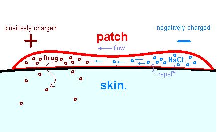 iontophoresis.PNG